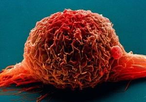 چه کسانی به سرطان مثانه مبتلا میشوند
