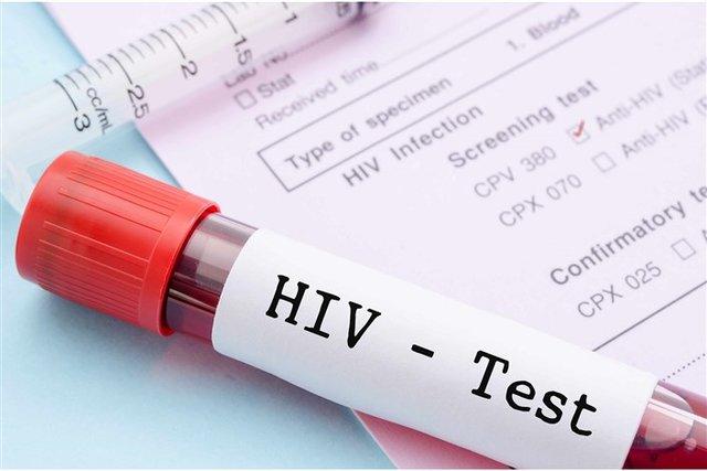 علائم ابتلا به ایدز در زنان