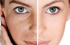 میکرونیدلینگ و لایهبرداری پوست چه فایده و عوارضی دارد؟