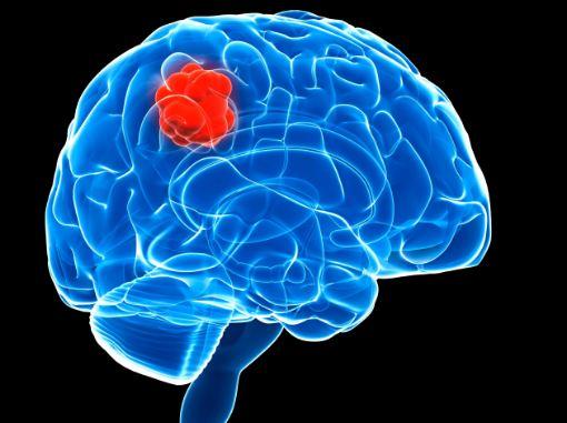 علایم ابتلا به سرطان مغز چیست؟
