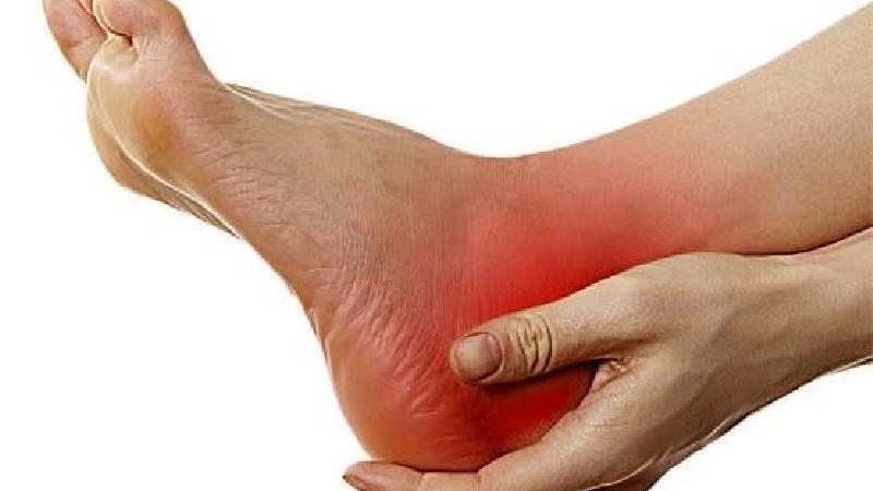 خارپاشنه میتواند بسیار دردناک باشد برای درمان آن از روغن دانه کتاب استفاده کنید