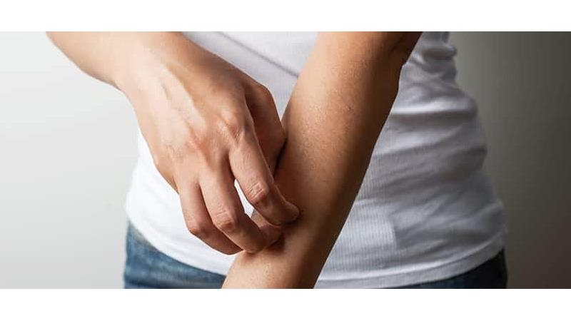 برای درمان حساسیت پوستی چه کار کنیم