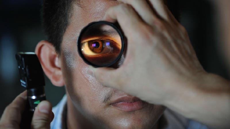 برای درمان قرمزی چشم چه کارهایی باید انجام بدهیم