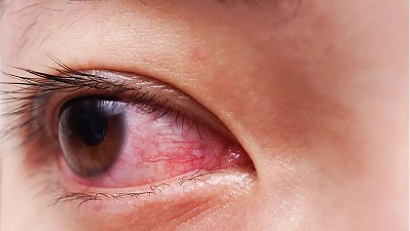 قرمز شدن چشم ها چه دلایلی دارد