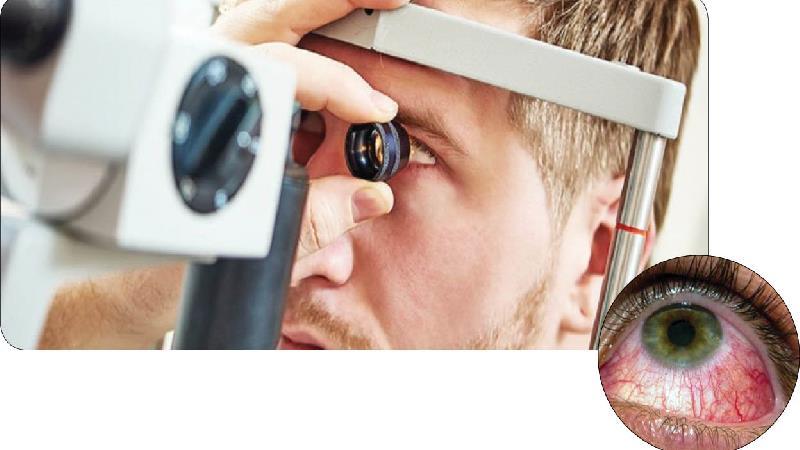 تبخال چشم چه علایمی دارد