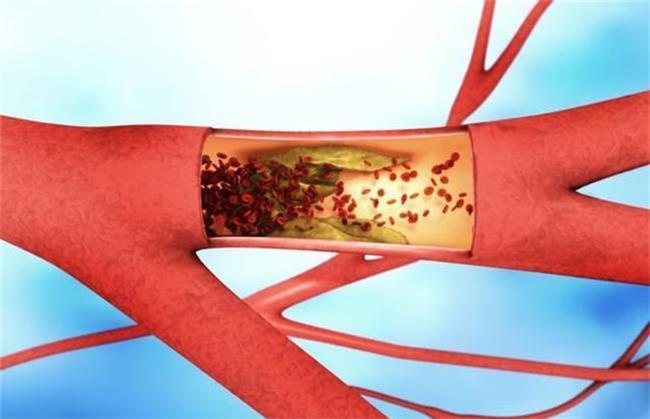 برای کاهش چربی خون چه باید کرد
