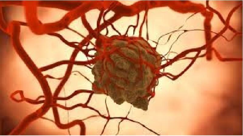 آیا سرطان غدد لنفاوی قابل درمان است
