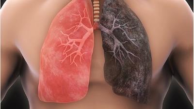 سرطان ریه چه دلایلی دارد