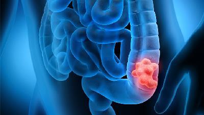 سرطان روده به چه دلیلی ایجاد می شود