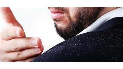 برای از بین بردن شوره و خارش پوست سر چه کار کنیم