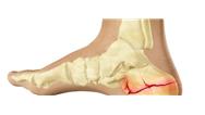 نشانههای شکستگی های تنشی چیست