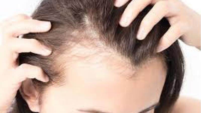 جلوگیری از ریزش مو در بیوتین