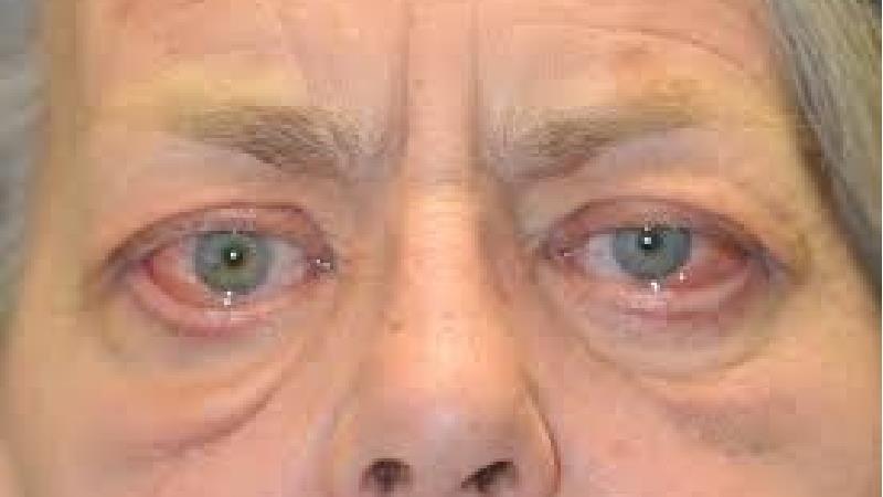 نشانه های بیماری تیروئید چشمی را بخوانید