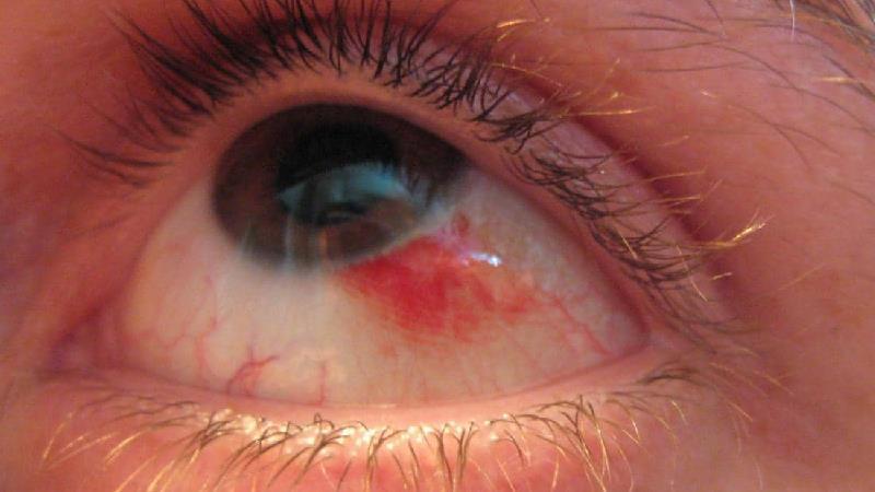 لکه قرمز در چشم به چه دلیل ایجاد می شود