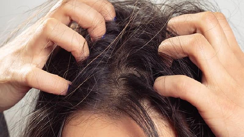 برای درمان شکستگی مو چه کار کنیم