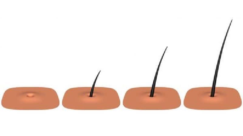 یکسری کارها برای رشد مو مضر است