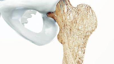 علل پوکی استخوان چیست