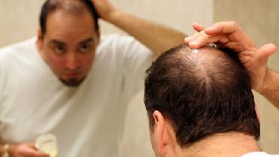 بهترین مواد غذایی و خوراکیها برای تقویت و جلوگیری از ریزش مو