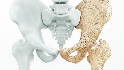 راه درمان پوکی استخوان چیست