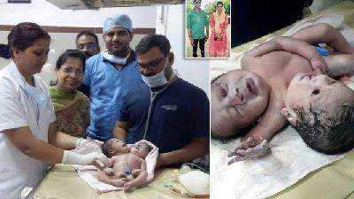 تولد نوزادی با 2 سر و 3 دست