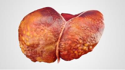 عواملی که باعث افزایش احتمال ابتلا به سرطان کبد میشود