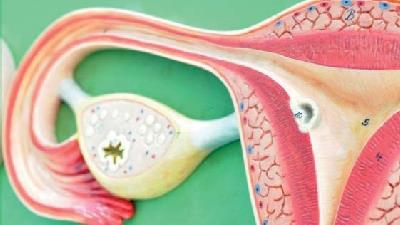 دلایل ایجاد کیست تخمدان