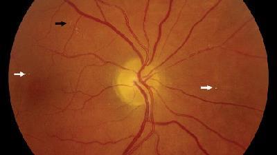 علت های سکته چشمی گوناگون است