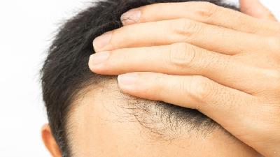 أویشن به رشد مو کمک می کند