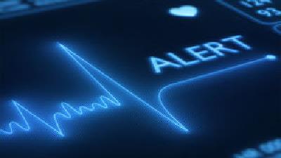 سنکوپ قلبی چگونه است
