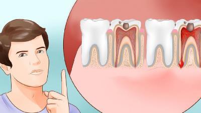 برای تسکین دندان درد چه کنیم