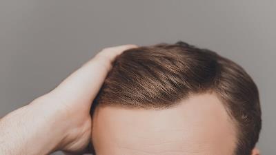 سلامت موهای خود را بابونه حفظ کنید