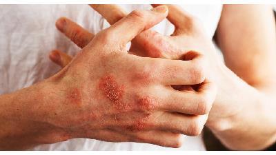 اگزما یکی از علایم مشکلات گوارشی است