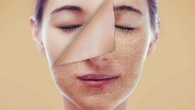 خشکی پوست را چه طور برطرف کنیم