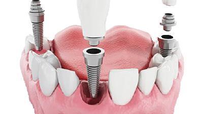 ایمپلنت دندان چه معایت و مزایایی دارد