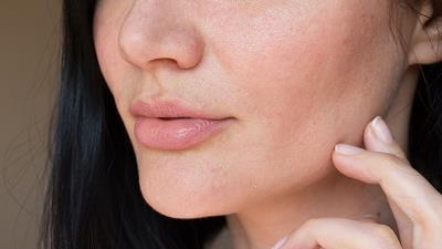 درباره تاثیر ویتامین E  بر پوست اغراق شده است