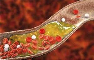 کلسترول خون را چگونه بدون دارو کاهش بدهیم