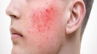روزاسه چه نوع بیماری پوستی است