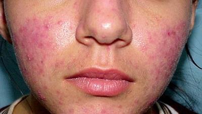 نشانه های روزاسه پوستی چیست