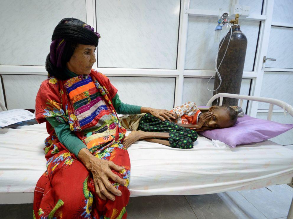 خطر مرگ در کمین 7 میلیون یمنی گرسنه