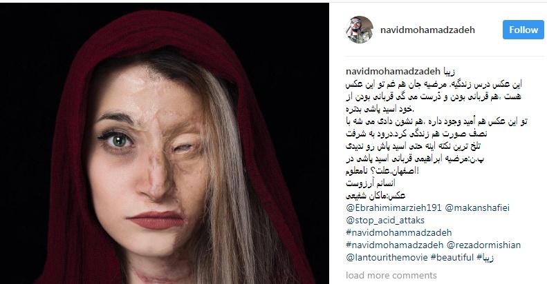 یادداشت نوید محمدزاده درباره قربانی اسیدپاشی اصفهان