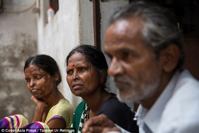 قربانیان اسیدپاشی همچنان با مهاجم زندگی میکنند
