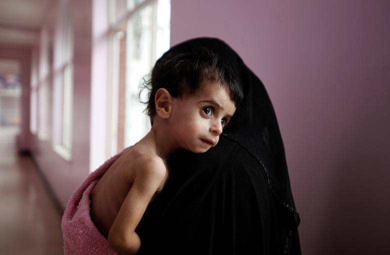 فاجعه قحطی در یمن ادامه دارد