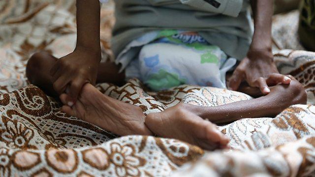 در یمن کودکان از گرسنگی میمیرند