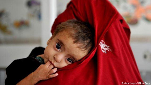 یونیسف: میتوان جلوی مرگ ۸۰ درصد نوزادان را گرفت