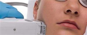 همه آنچه درباره لیزر پوست باید بدانید