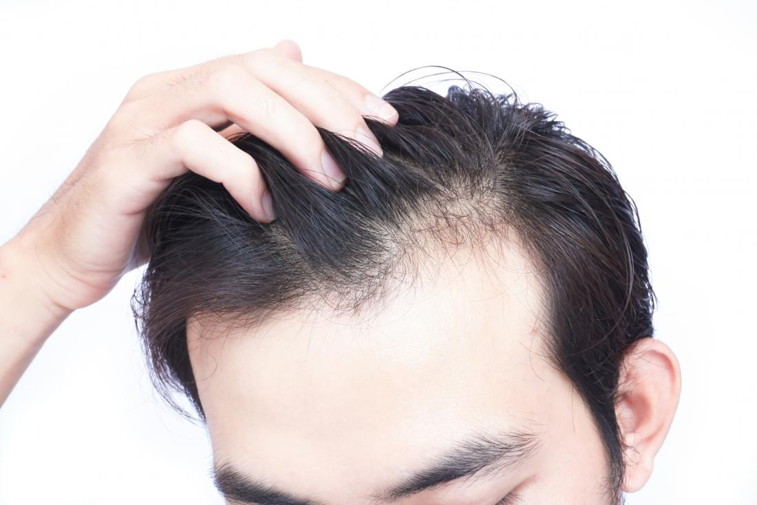 موهایمان چرا شوره میزند؟