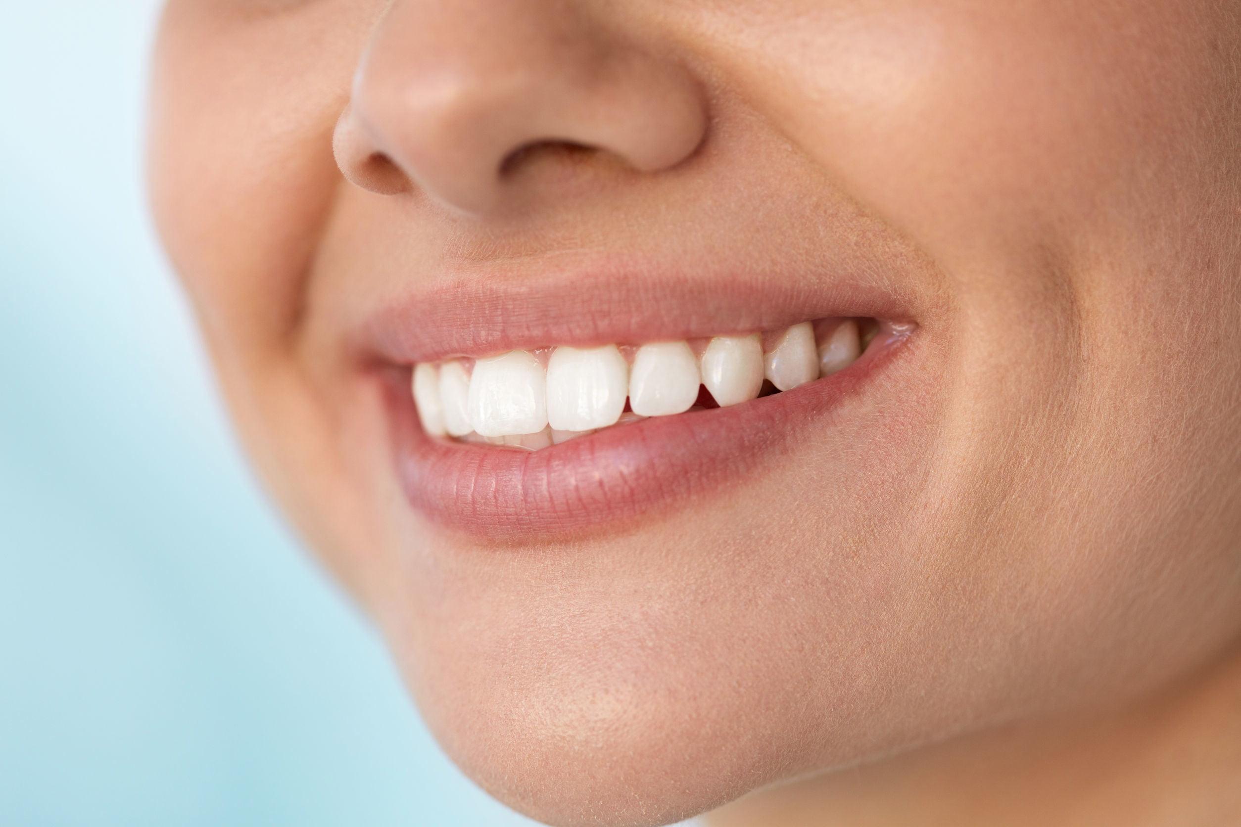 بهترین راه برای داشتن طرح لبخند زیبا
