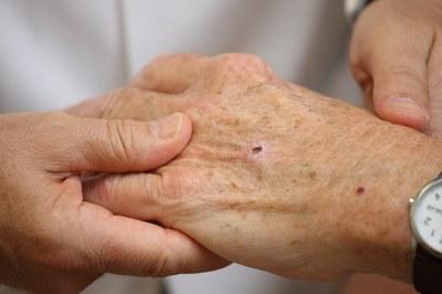 نشانههای سرطان پوست
