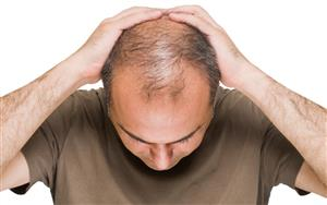 روشهای طب سنتی برای جلوگیری از ریزش مو