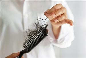 نکاتی درباره ریزش مو در زنان